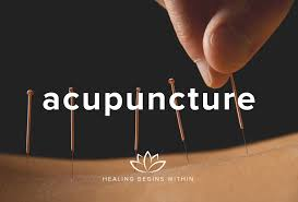 Acupuncture Billing Services