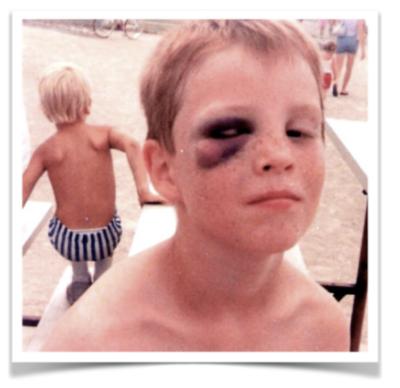 Bruised Sean Arnold