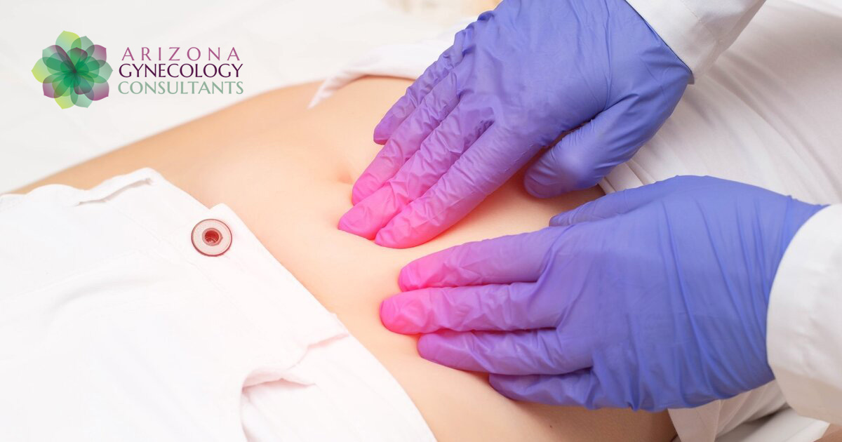 Sonata Fibroid Treatment
