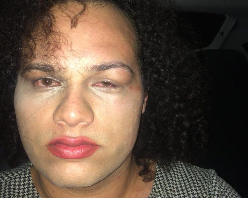 Gabe foi agredida por dois homens na sexta-feira, 3, em São Carlos, SP. (Foto: Arquivo Pessoal)