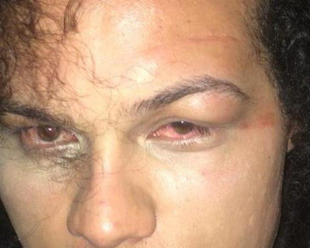 Polícia Civil irá investigar caso de agressão a travesti em São Carlos. (Foto: Arquivo Pessoal)