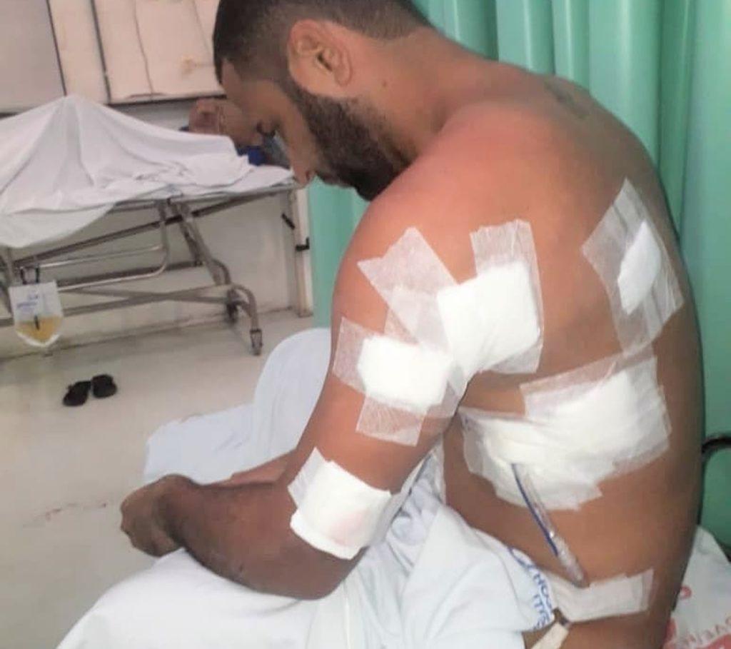Marcelo Macedo levou 4 tiros após beijar outro rapaz em um bar na cidade de Camaçari, na Bahia. (Foto: Reprodução/Instagram)