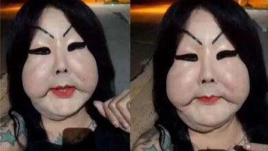 Gaúcha trans Juju Oliveira relata bullying após colocar silicone no rosto: 'Me chamam de fofão'. (Foto: Reprodução/Instagram)