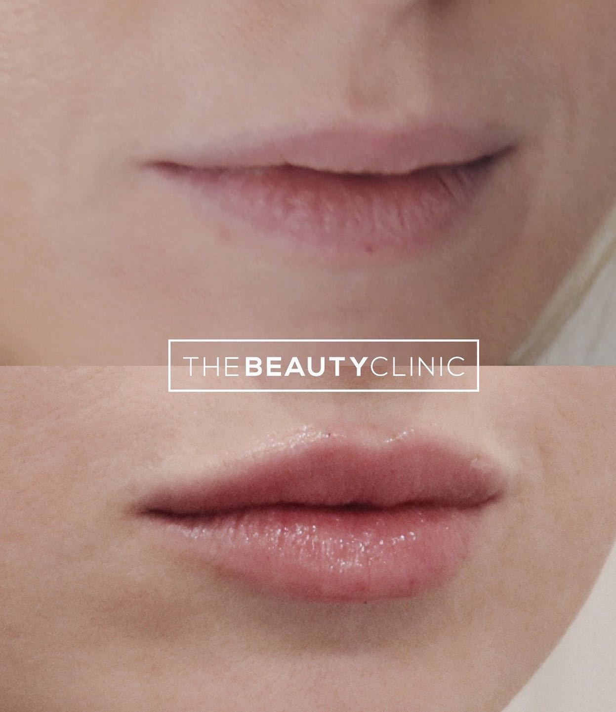 The Beauty Clinic We used Restylane Kysse to gently add volume and define the shape of these pretty lips