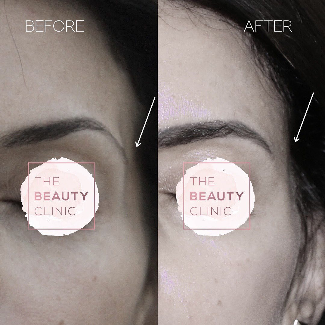 The Beauty Clinic Let's talk about hollow temples..
