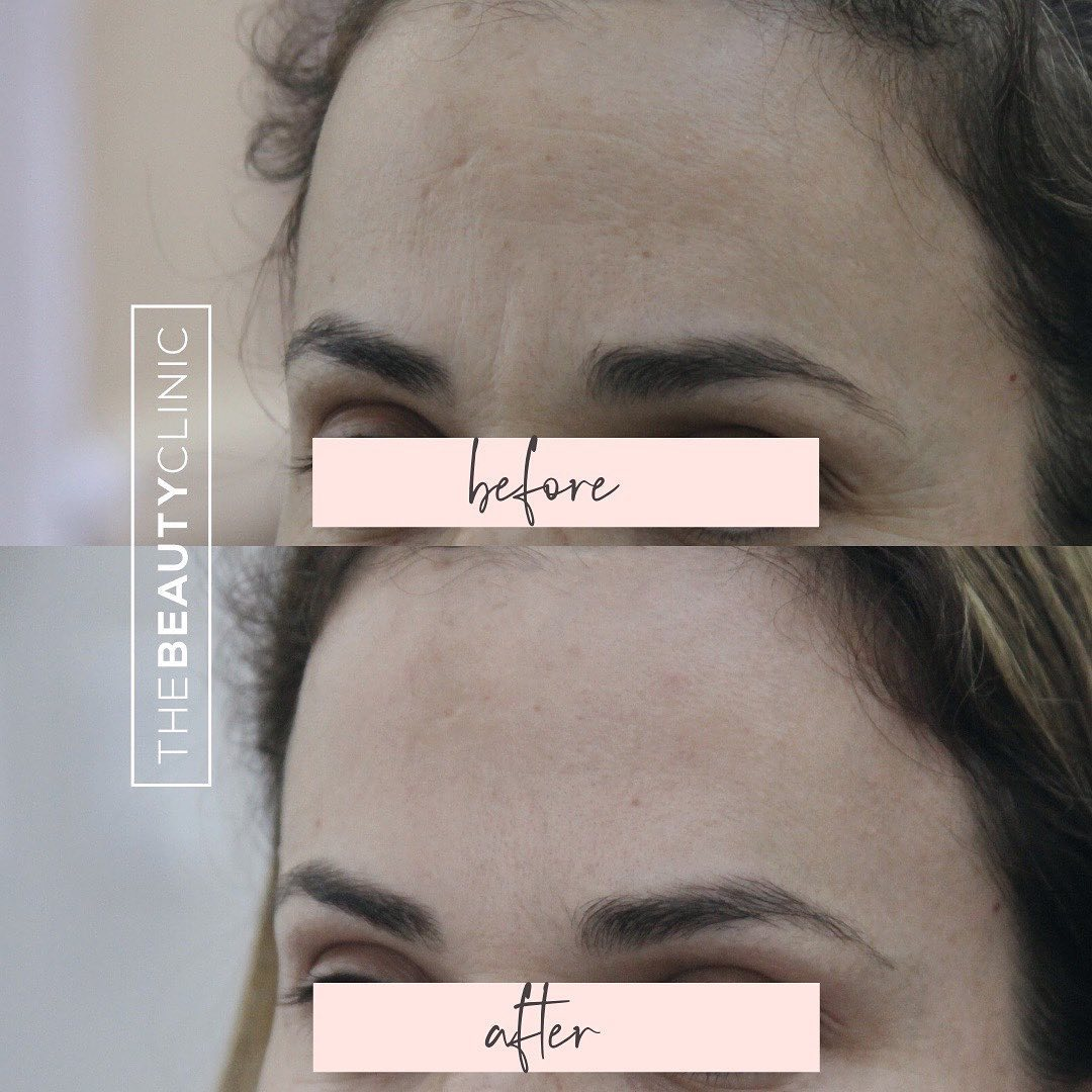 The Beauty Clinic Botox is the most common treatment we perform on our patients