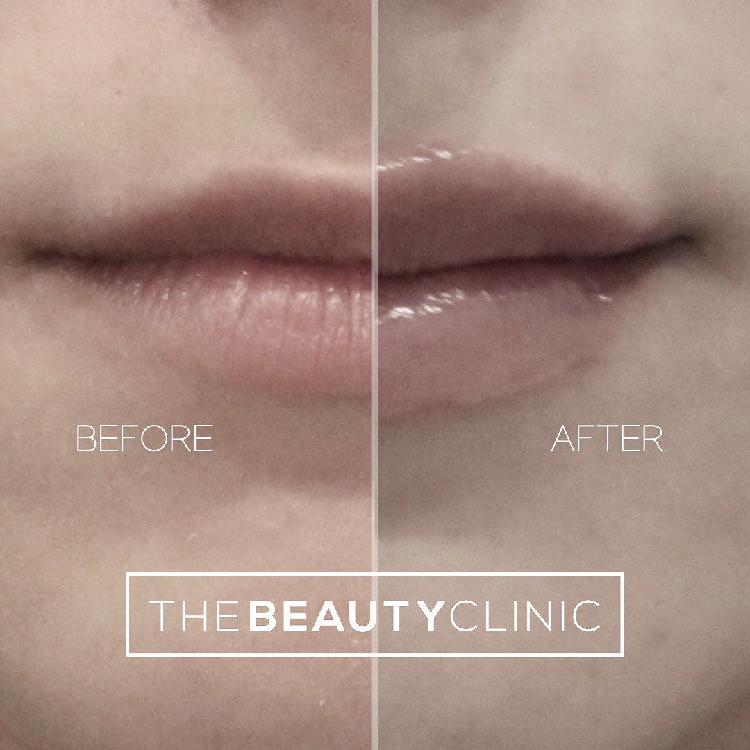 The Beauty Clinic Getting lip filler doesn't mean that you have to end up with big, dramatic lips.