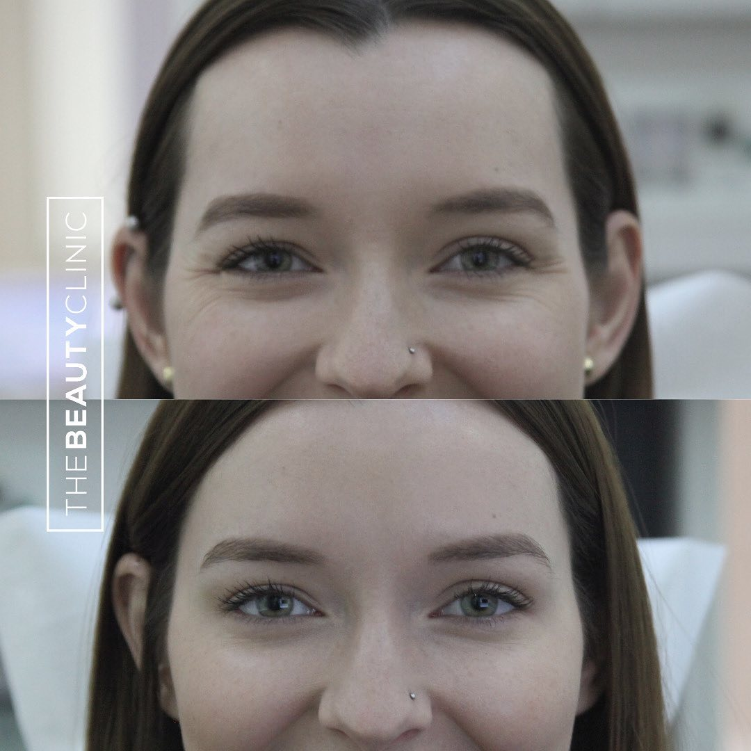 The Beauty Clinic Botox for Eyes