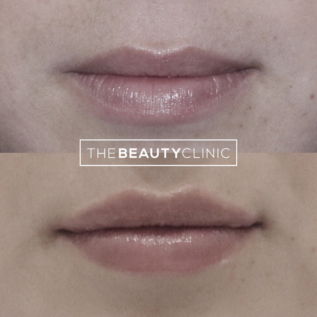 The Beauty Clinic 𝙁𝙞𝙡𝙡𝙚𝙧 𝙐𝙨𝙚𝙙: Hyaluronic acid filler (we only use FDA approved Restylane and Juvederm brands)