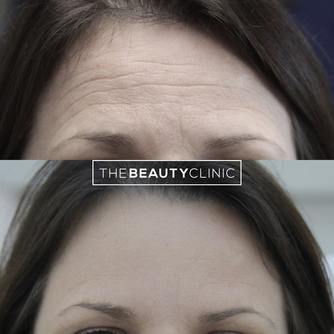 The Beauty Clinic Botox is the most common treatment we perform.