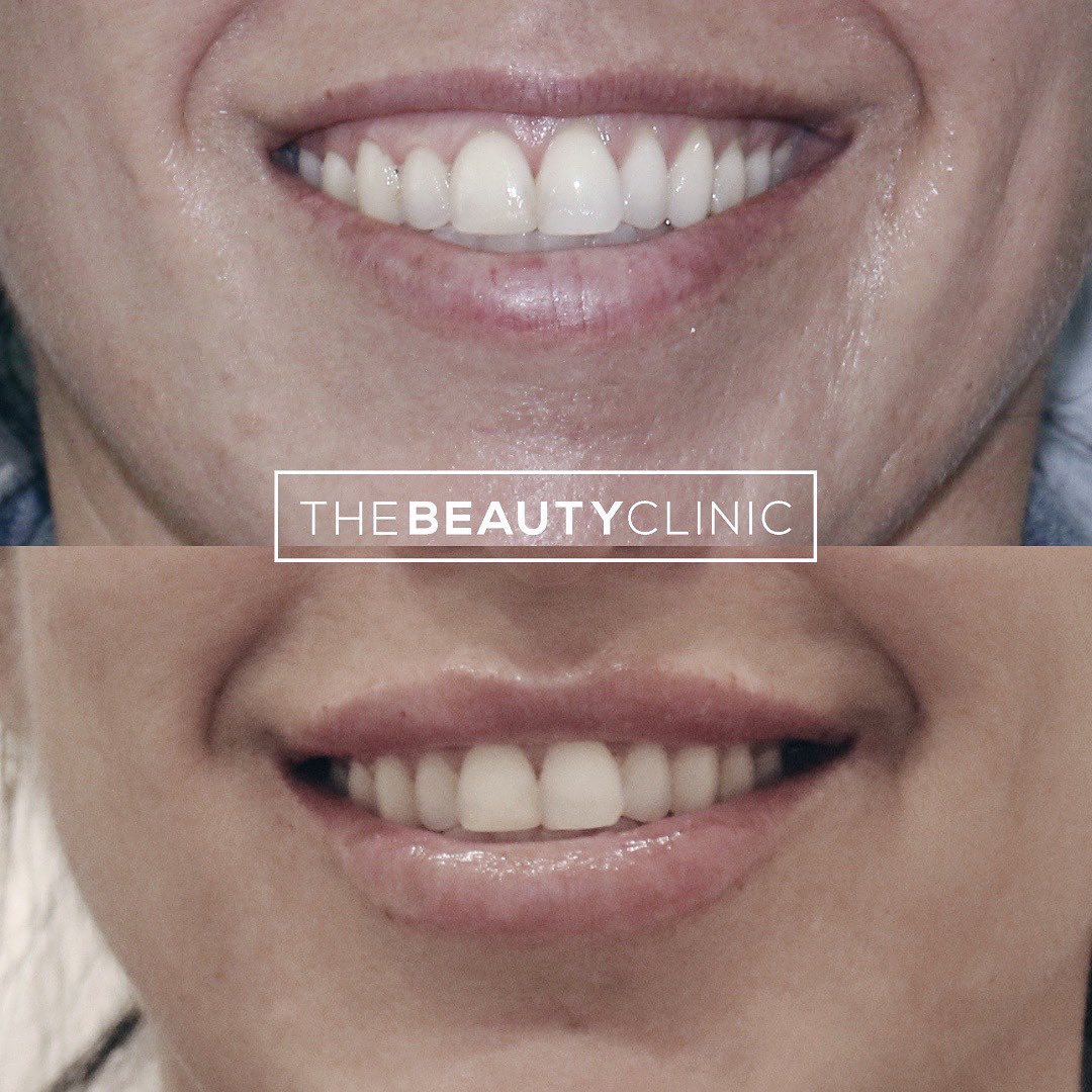The Beauty Clinic Smile Enhancement