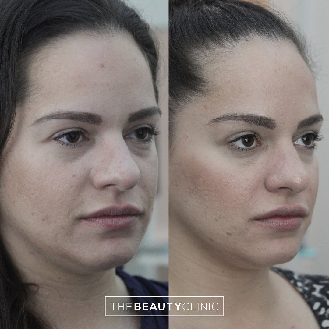 The Beauty Clinic A great example of how tiny changes with injectibles to produce an overall fresher look.
