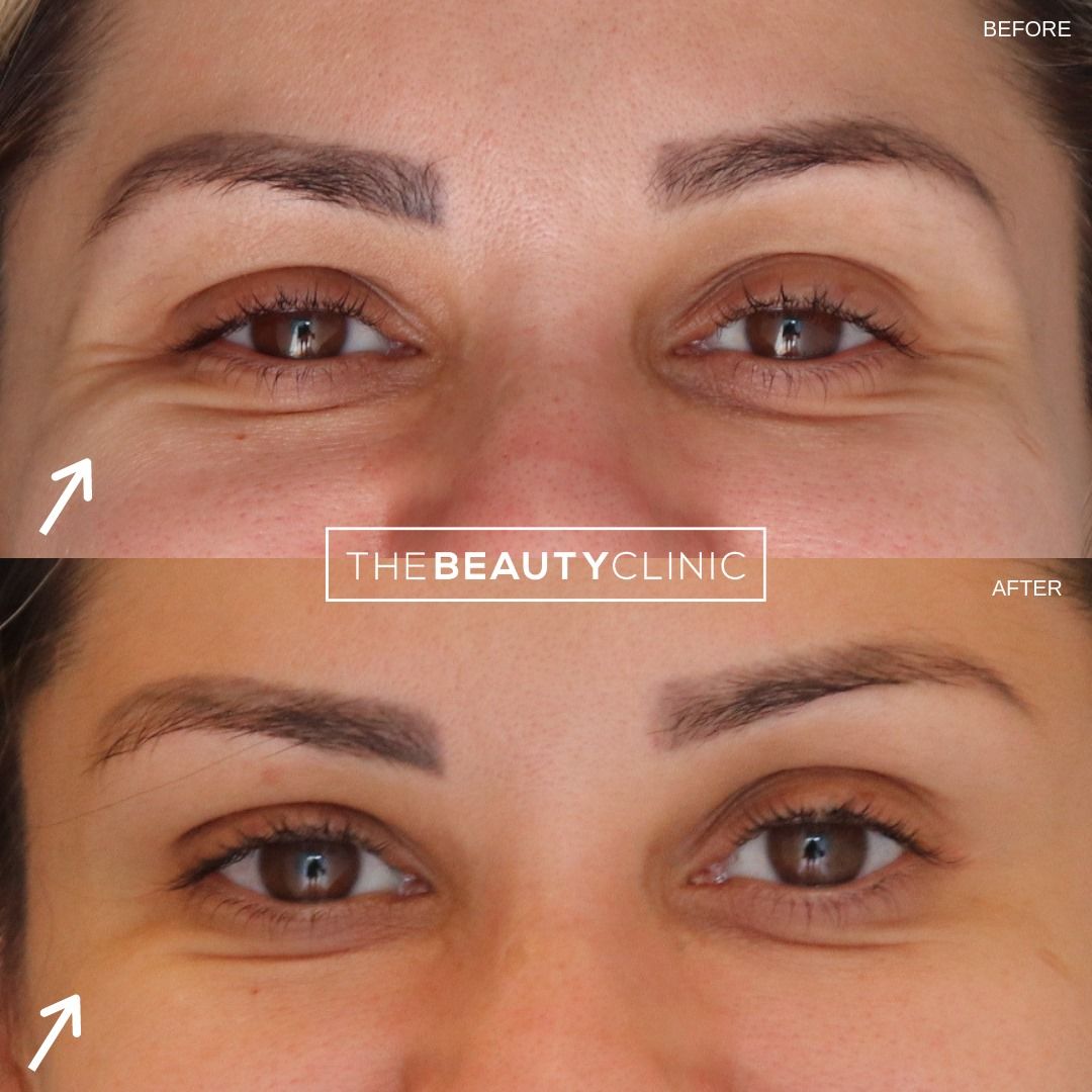 The Beauty Clinic 🌟Treatment: Botox on the Crow's Feet wrinkles