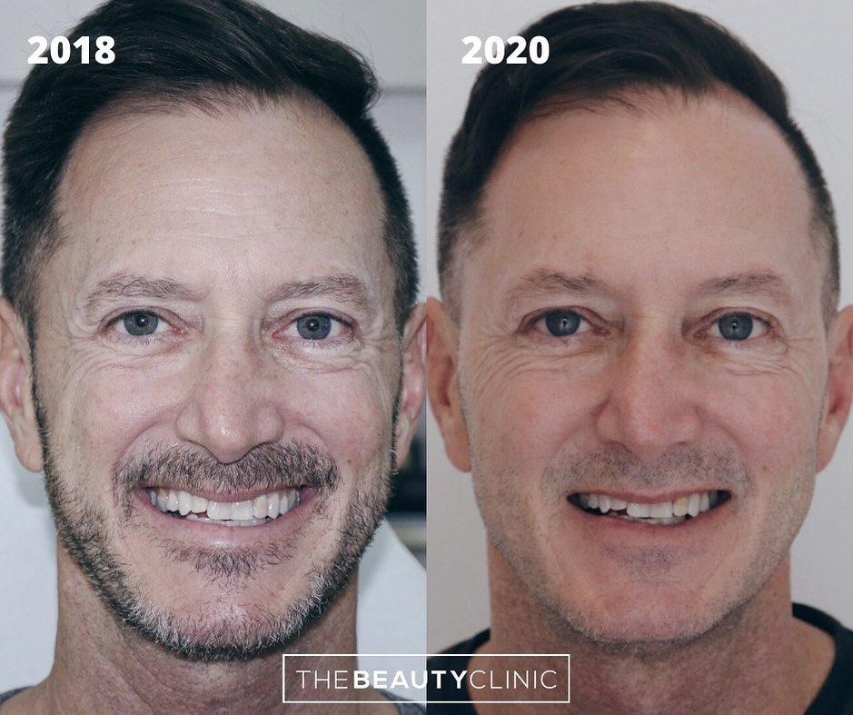 Sculptra is so amazing for men because the results look so natural.