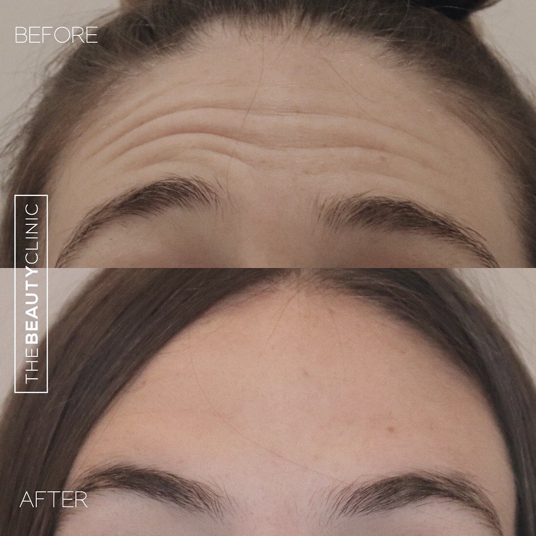 Forehead wrinkles? We made them disappear in less than 5 minutes with Botox.