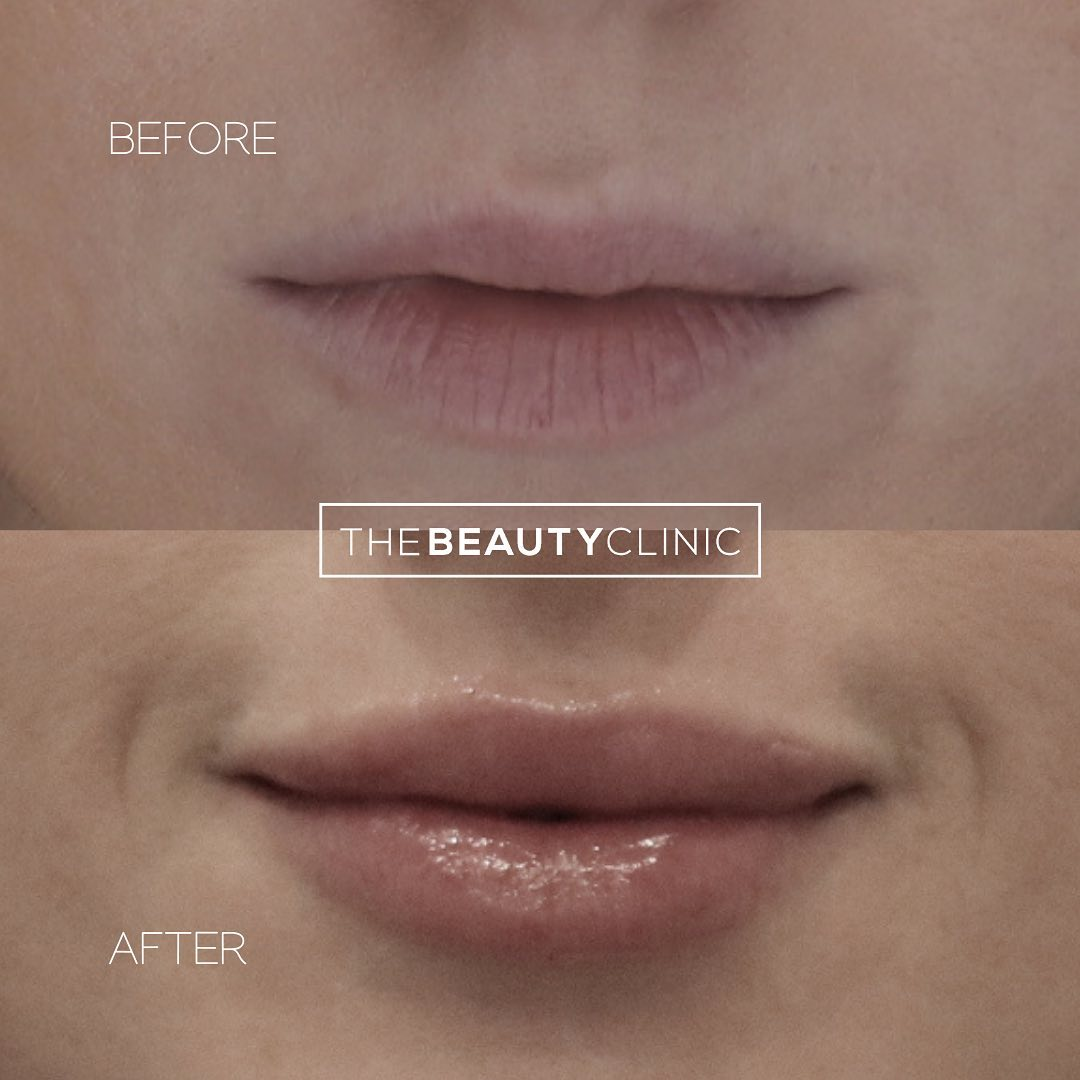 With a delicate touch and the right filler, you can have natural-looking, luscious lips 👄 We offer complimentary consultations, in which we are happy to discuss your goals and offer our specific recommendations.