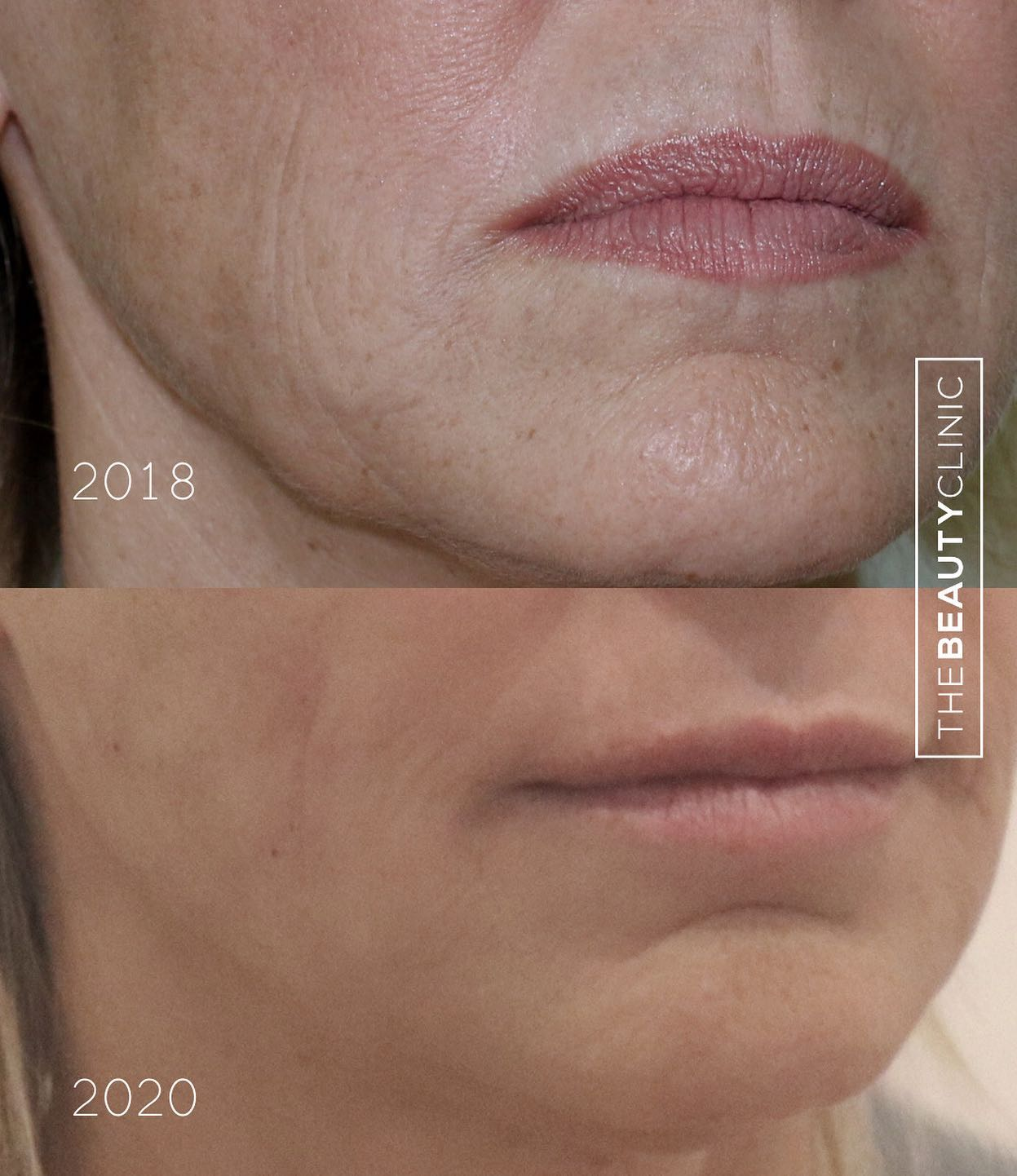 We lose collagen and elastin as we age, and this loss is seen in loose skin, wrinkles, and jowls.