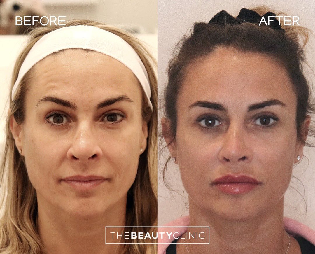 The goal is to make you look more refreshed and balanced, all while keeping you looking natural.