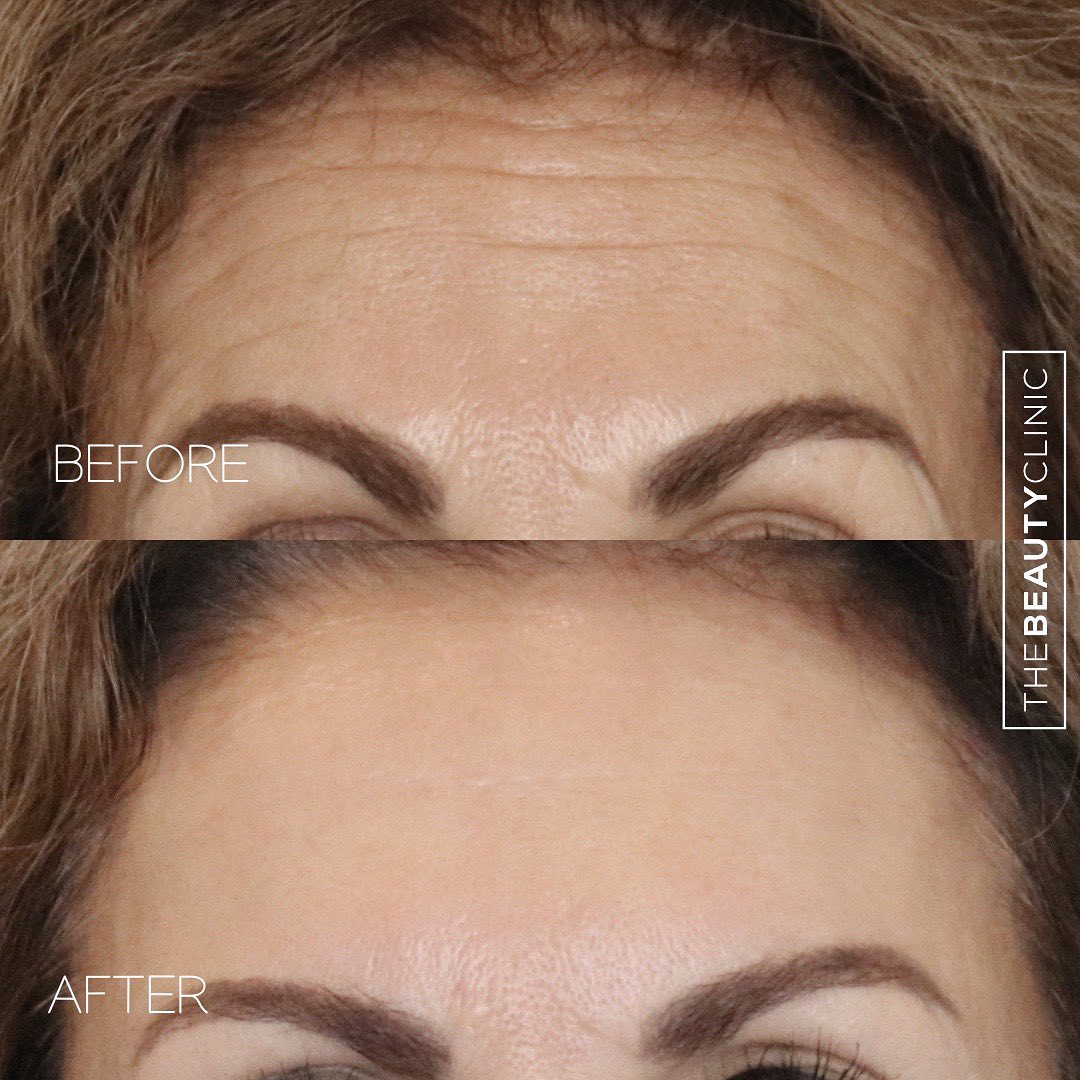 Before and After lines
