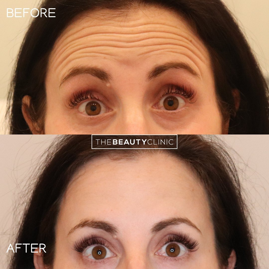 𝙒𝙧𝙞𝙣𝙠𝙡𝙚 𝙍𝙚𝙡𝙖𝙭𝙚𝙧𝙨 𝙊𝙛𝙛𝙚𝙧𝙚𝙙: We use Botox and Dysport about 50% / 50% depending on the patient anatomy, history and goals.