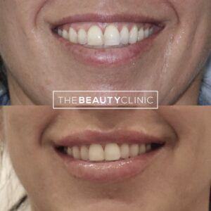 """A wonderful benefit to lip filler is that it helps the upper lip """"show"""" more when you smile (and covers more of the gums if you have a gummy smile)."""