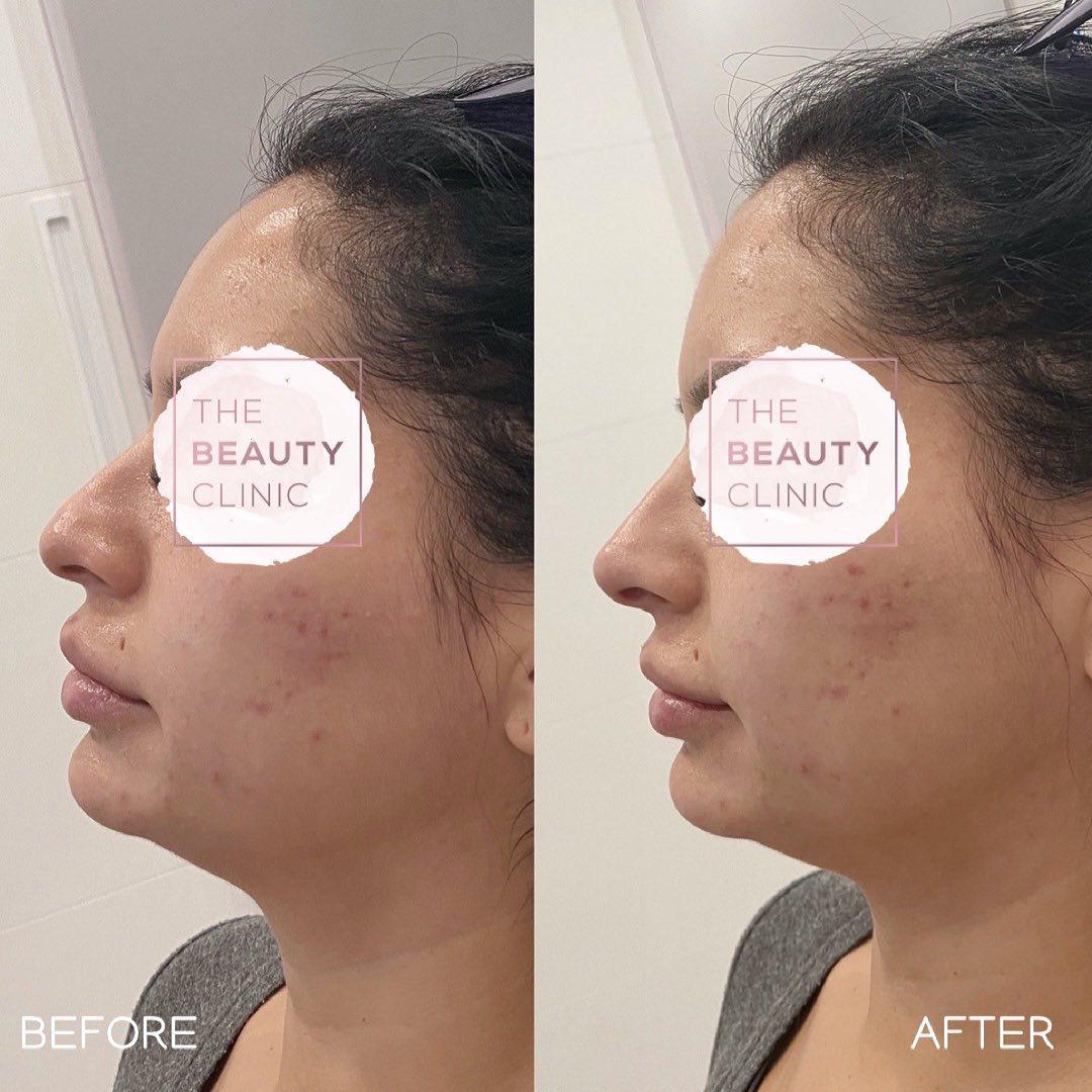 The Beauty Clinic Nose Enhancement