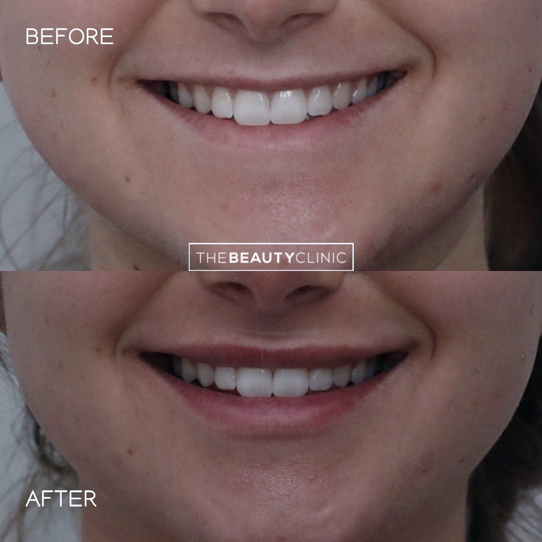 The Beauty Clinic Lip Filler