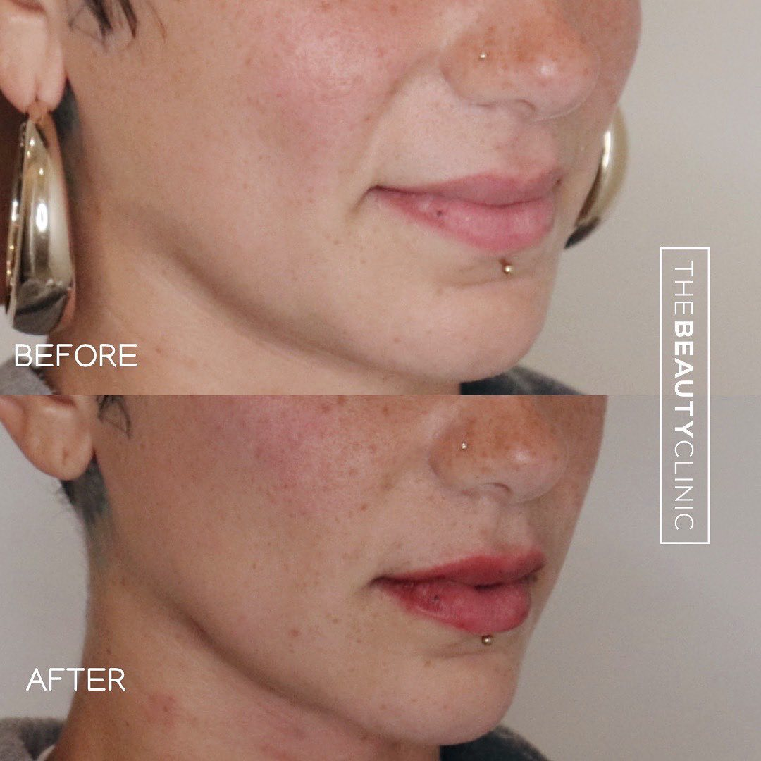 The Beauty Clinic Before and After