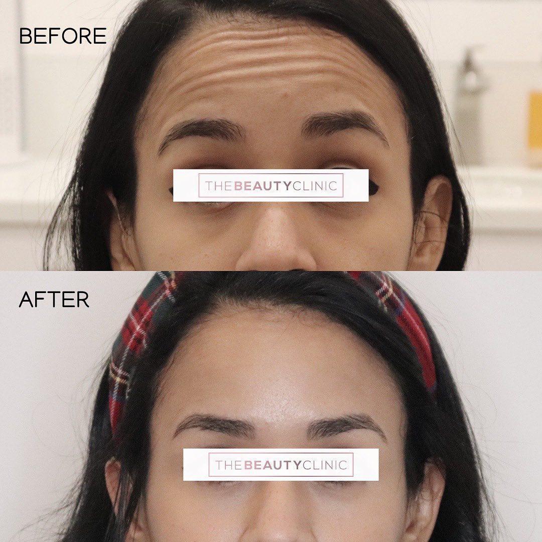 The Beauty Clinic Botox