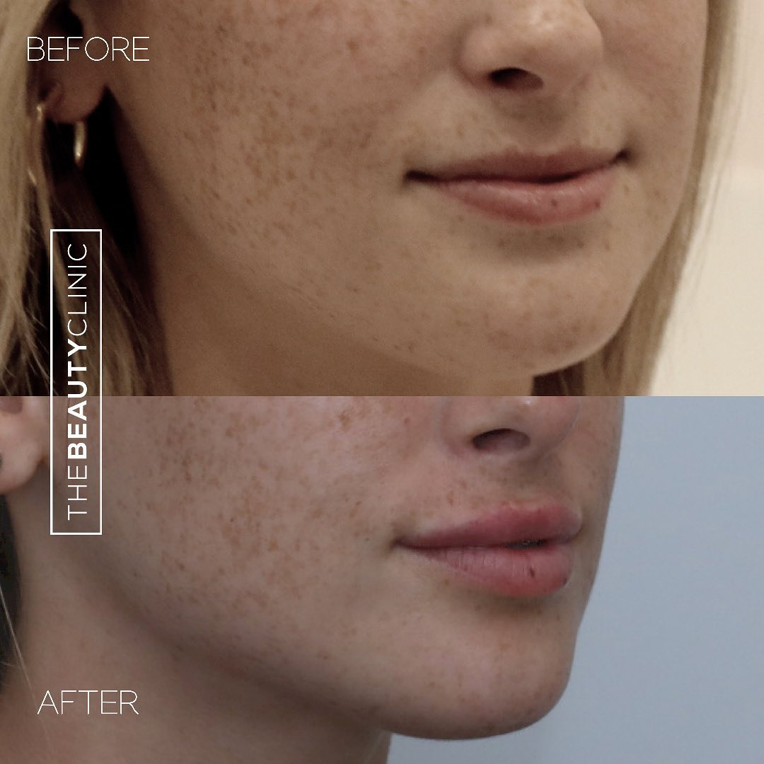 The Beauty Clinic Lip Injection Botox