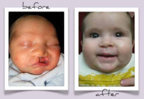 Unilateral Cleft Palate