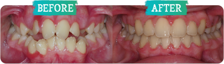 Orthodontic Before & Afters