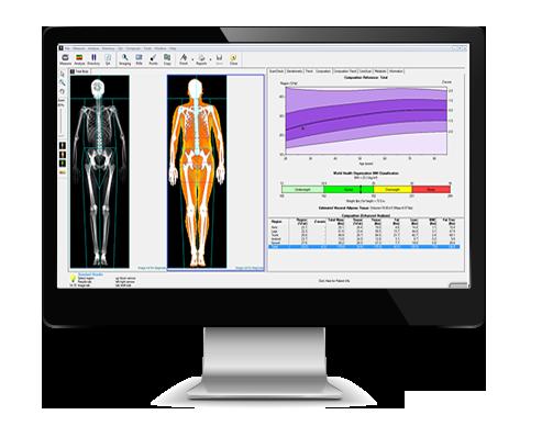 DEXA Scan graphic on computer screen graphic