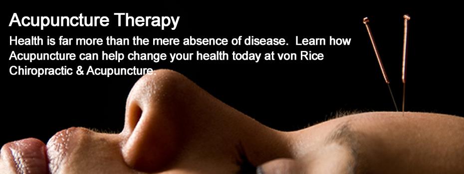 Acupuncture - von Rice Chiropractic North Phoenix 85032