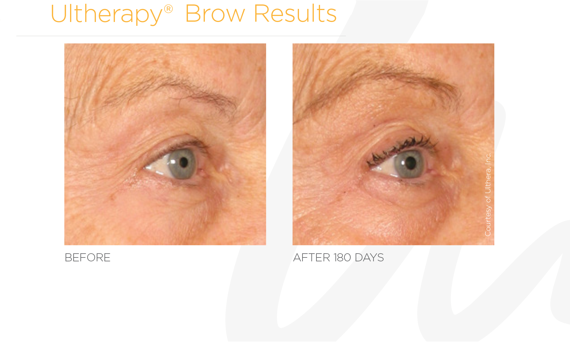 Ultherapy Brow Before And After Results