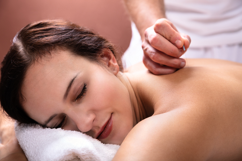 The Unexpected Benefits of Acupuncture