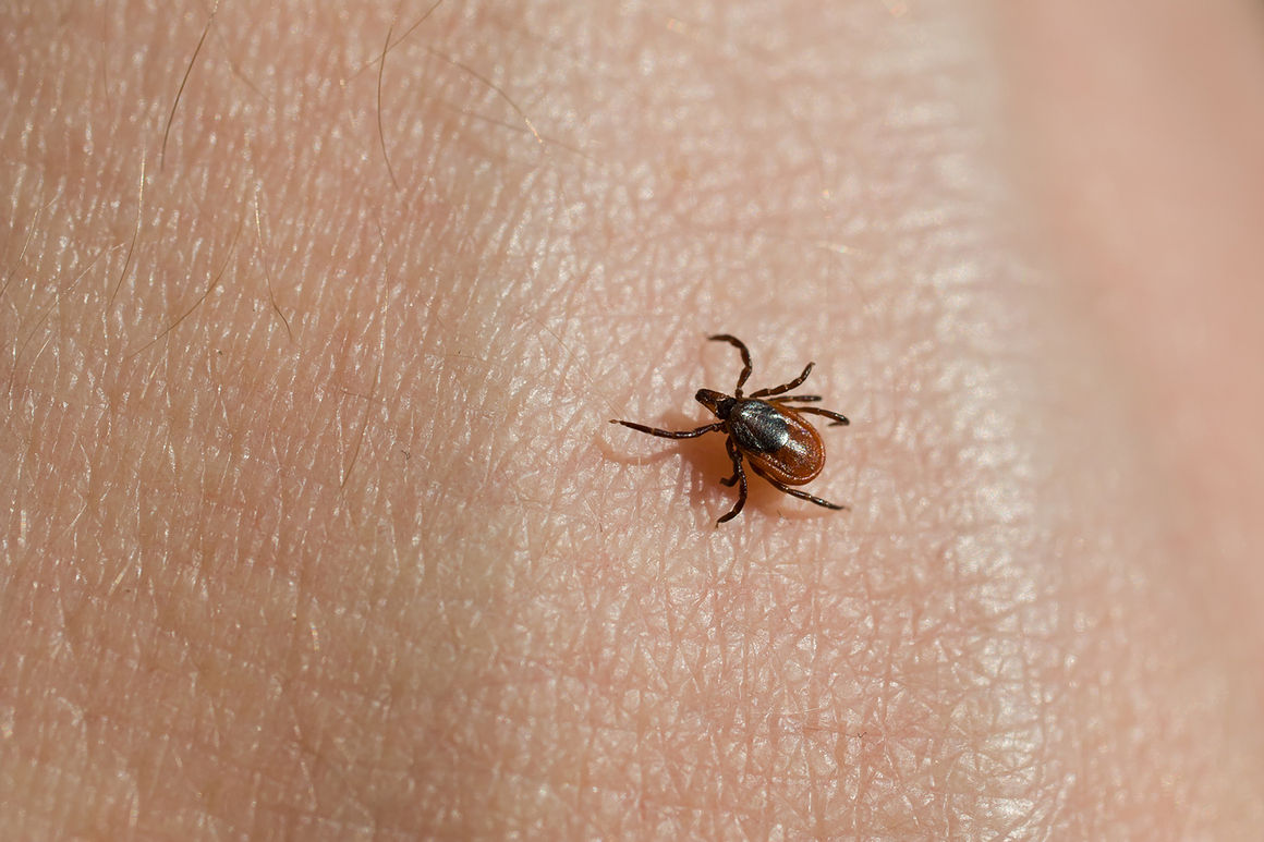 Chronic Lyme Disease: Does It Exist