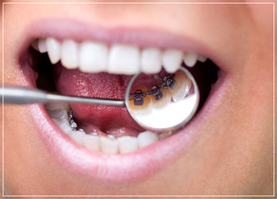 Lingual Braces Houston Dentist