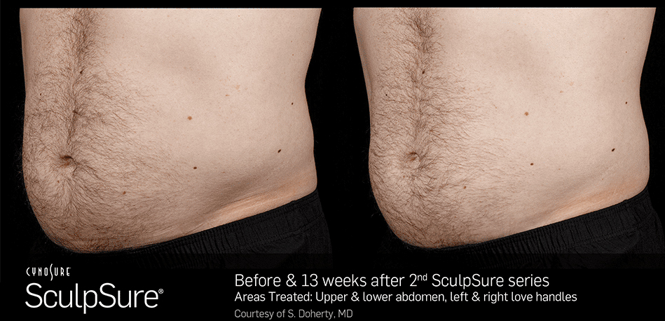 Irvine Family Care - SculpSure - Before and After Photos