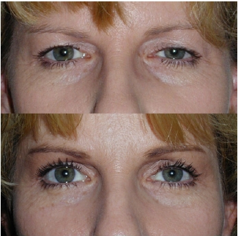 eyelid surgery before after 2