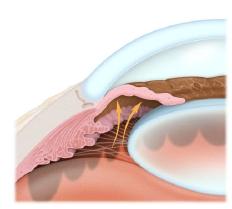 Glaucoma Services Angle Closure