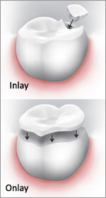 inlay-outlay