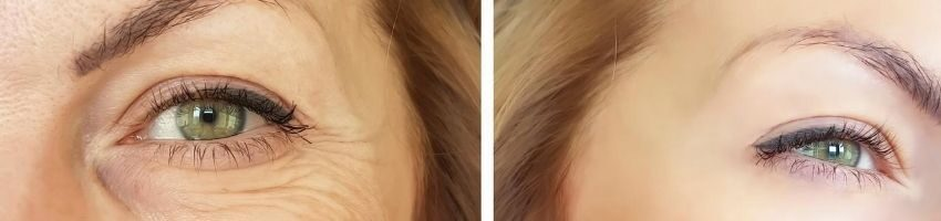 Is artefill effective?