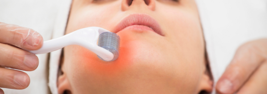 The result of microneedling