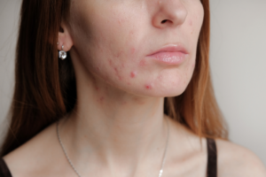 A picture of a 30's woman experiencing acne outbreak