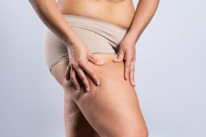 Woman with saddlebags on her thighs