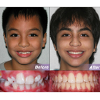 Mixed Dentition Case Sample