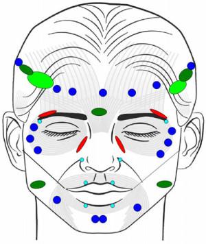 Botox-injection-spots