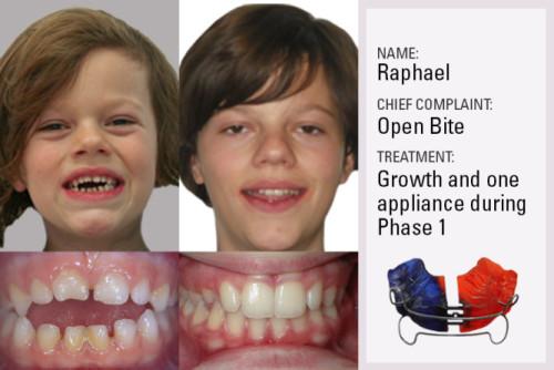 Kids Orthodontics Cases