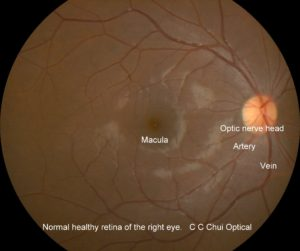 Normal fundus 2a RE